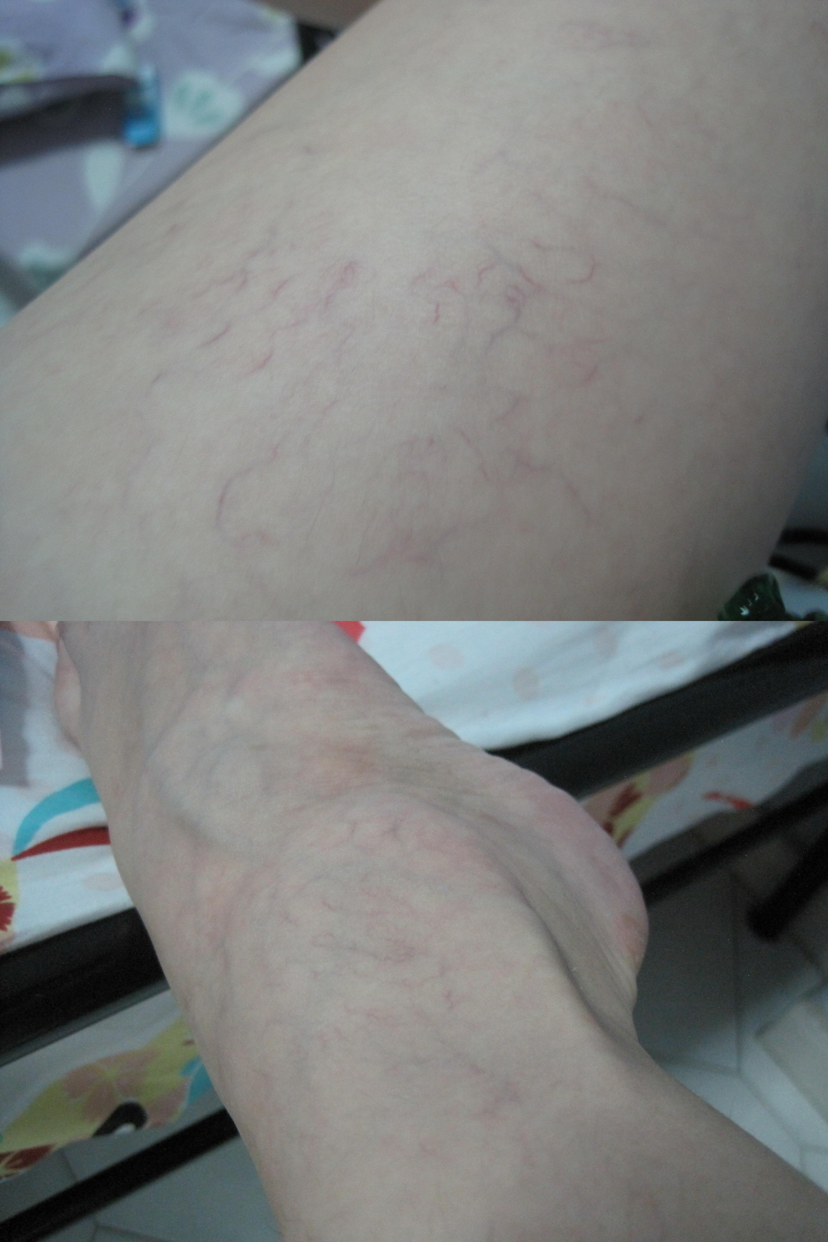 ea5d1e3037fc3e Scholl Sleeping Leggings: battle with cellulite + spider veins ...
